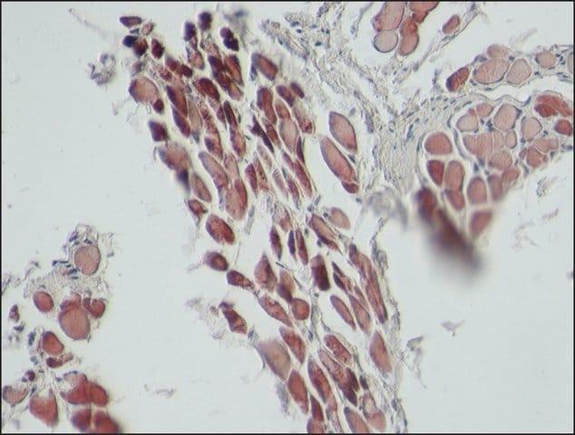 Immunohistochemistry (Formalin/PFA-fixed paraffin-embedded sections) - Anti-Sarcomeric Alpha Actinin antibody [EA-53] (ab9465)