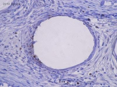 Immunohistochemistry (Formalin/PFA-fixed paraffin-embedded sections) - Anti-Myeloperoxidase antibody (ab9535)