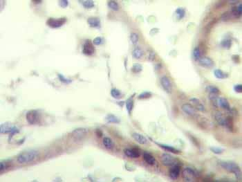 Immunohistochemistry (Formalin/PFA-fixed paraffin-embedded sections) - Anti-IGF2 antibody (ab9574)