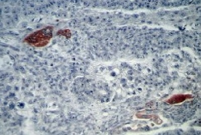 Immunohistochemistry (Formalin/PFA-fixed paraffin-embedded sections) - Anti-hCG beta antibody [5H4-E2] (ab9582)