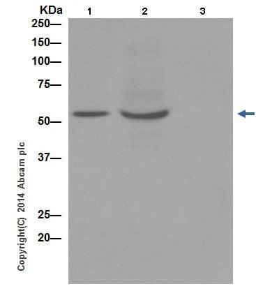 Immunoprecipitation - Recombinant human TNF alpha protein (ab9642)