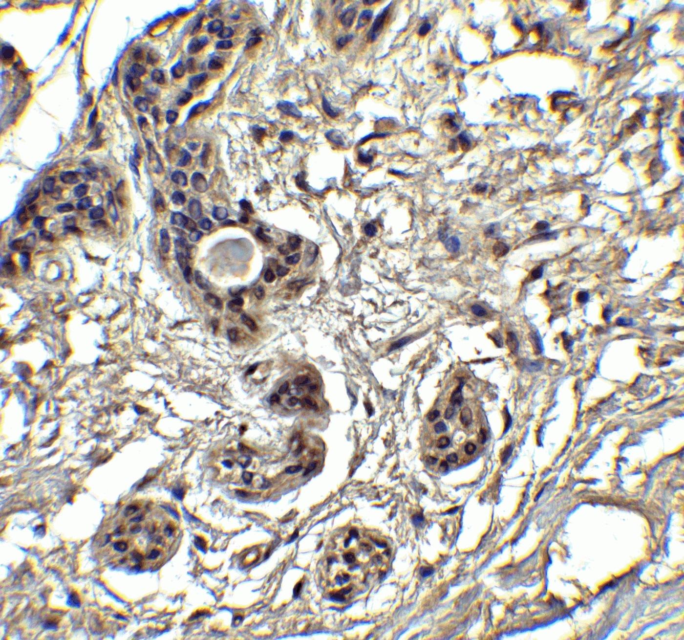 Immunohistochemistry (Formalin/PFA-fixed paraffin-embedded sections) - Anti-PUMA antibody (ab9645)