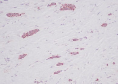 Immunohistochemistry (Formalin/PFA-fixed paraffin-embedded sections) - Anti-RANTES antibody (ab9679)