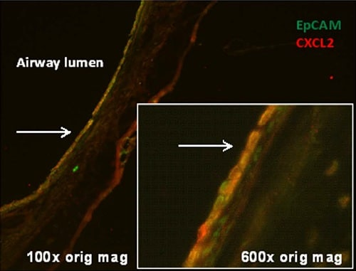 Immunohistochemistry (Frozen sections) - Anti-CXCL2 antibody (ab9777)