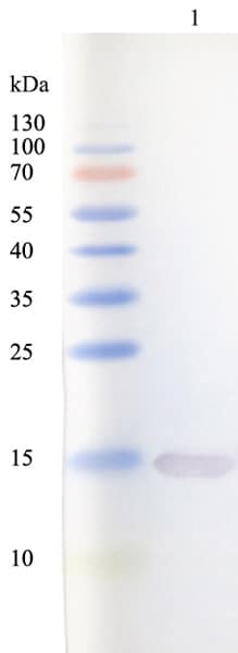 Western blot - Anti-G-CSF antibody [5D7] (ab9818)