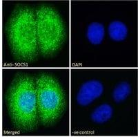 Immunocytochemistry - Anti-SOCS1 antibody (ab9870)