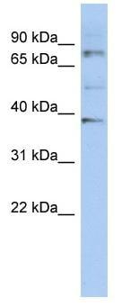 Western blot - Anti-OAS2 antibody (ab90045)