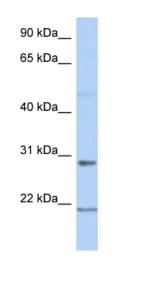 Western blot - Anti-C12orf53 antibody (ab90067)