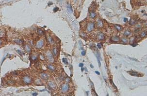 Immunohistochemistry (Formalin/PFA-fixed paraffin-embedded sections) - Anti-Cytokeratin 7 antibody (ab90083)