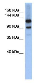 Western blot - Anti-HIPK1 antibody (ab90103)