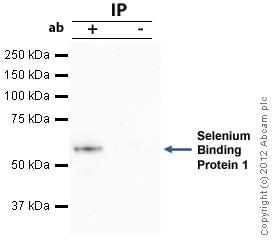 Immunoprecipitation - Anti-Selenium Binding Protein 1/SBP antibody (ab90135)