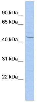 Western blot - Anti-ZBTB12 antibody (ab90147)