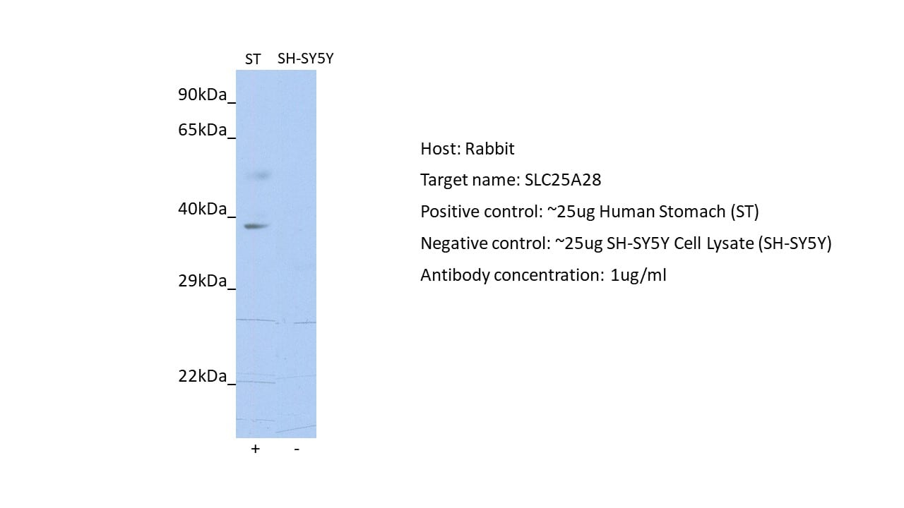 Western blot - Anti-SLC25A28 antibody (ab90170)