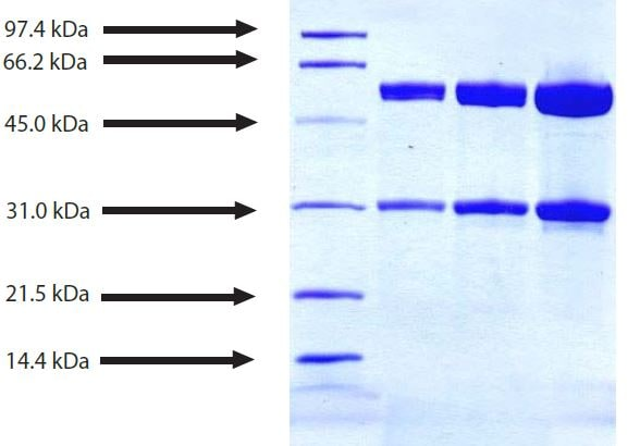 SDS-PAGE - Native Human IgG2 protein (ab90284)
