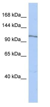 Western blot - Anti-MAP4K4 antibody (ab90292)