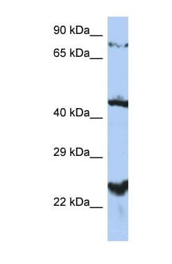 Western blot - Anti-MRS2/HPT antibody (ab90295)