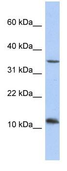 Western blot - Anti-NXNL2 antibody (ab90331)