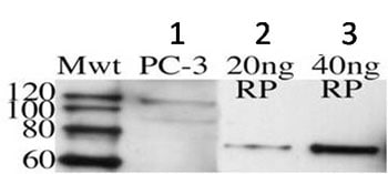 Western blot - Anti-Huntingtin Interacting Protein HIP1 antibody [1B11] (ab90341)