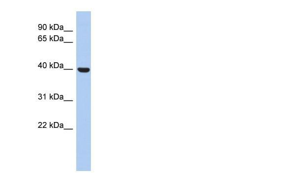 Western blot - Anti-STOML3 antibody (ab90368)