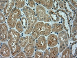 Immunohistochemistry (Formalin/PFA-fixed paraffin-embedded sections) - Anti-alpha Actinin/ACTN1 antibody [OTI7A4] (ab90421)