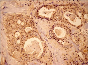 Immunohistochemistry (Formalin/PFA-fixed paraffin-embedded sections) - Anti-MEK1 antibody (ab90432)