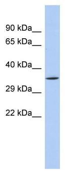 Western blot - Anti-SIRT4 antibody (ab90485)