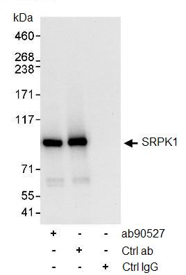 Immunoprecipitation - Anti-SRPK1 antibody (ab90527)