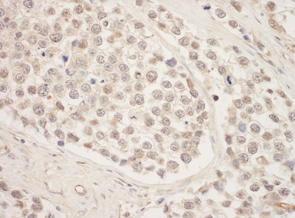 Immunohistochemistry (Formalin/PFA-fixed paraffin-embedded sections) - Anti-SRPK1 antibody (ab90527)