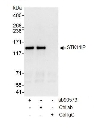 Immunoprecipitation - Anti-LIP1 antibody (ab90573)