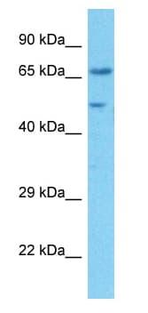 Western blot - Anti-SNAT2 antibody (ab90677)