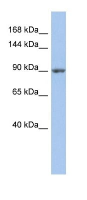 Western blot - Anti-MAP4K5 antibody (ab90684)