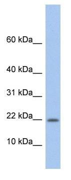 Western blot - Anti-NDP antibody (ab90690)