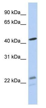 Western blot - Anti-BCKDHA antibody (ab90691)