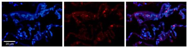 Immunohistochemistry (Formalin/PFA-fixed paraffin-embedded sections) - Anti-BCKDHA antibody (ab90691)