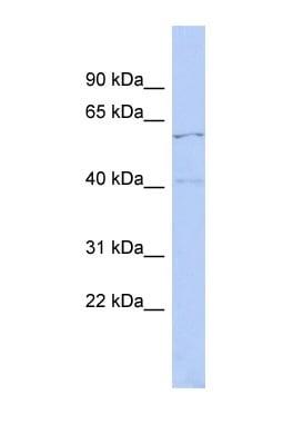 Western blot - Anti-ZNF384 antibody (ab90712)