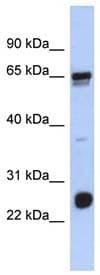 Western blot - Anti-C1orf103 antibody (ab90736)