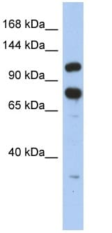 Western blot - Anti-ZFR antibody (ab90865)