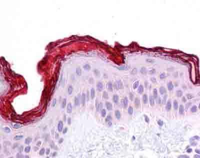 Immunohistochemistry (Formalin/PFA-fixed paraffin-embedded sections) - Anti-DBT antibody (ab90869)
