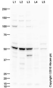 Western blot - Anti-CSAD/CSD antibody (ab91016)