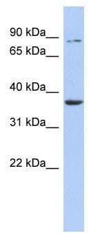 Western blot - Anti-HS3ST1 antibody (ab91065)