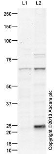 Western blot - Anti-Radixin antibody (ab91312)