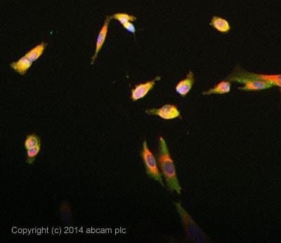 Immunocytochemistry/ Immunofluorescence - Anti-UNC5C antibody (ab91408)