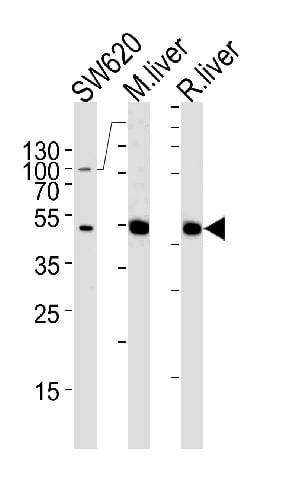 Western blot - Anti-Ornithine Carbamoyltransferase/OTC antibody (ab91418)
