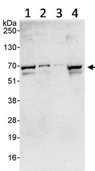 Western blot - Anti-PRMT3 antibody (ab91430)