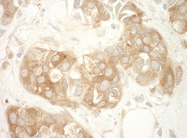 Immunohistochemistry (Formalin/PFA-fixed paraffin-embedded sections) - Anti-Vinculin antibody (ab91459)