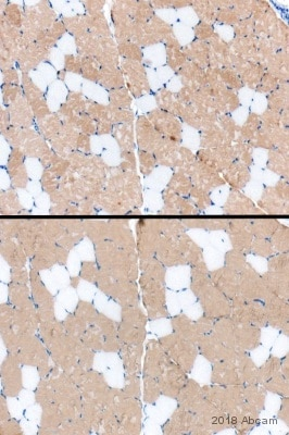 Immunohistochemistry (Formalin/PFA-fixed paraffin-embedded sections) - Anti-Fast Myosin Skeletal Heavy chain antibody (ab91506)