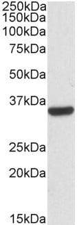 Western blot - Anti-Calponin 2 antibody (ab91513)