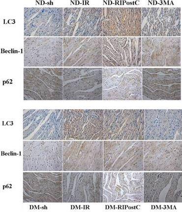 Immunohistochemistry (Formalin/PFA-fixed paraffin-embedded sections) - Anti-SQSTM1 / p62 antibody (ab91526)