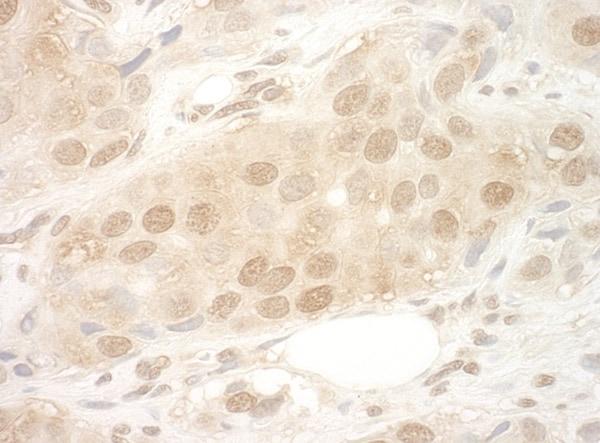Immunohistochemistry (Formalin/PFA-fixed paraffin-embedded sections) - Anti-eIF2B epsilon antibody (ab91563)