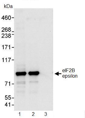 Immunoprecipitation - Anti-eIF2B epsilon antibody (ab91563)